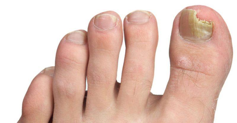 How to get rid from toe nail fungus toe nail fungus solutioingenieria Gallery