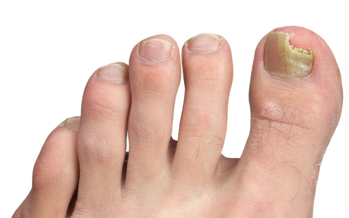 How To Get Rid From Toe Nail Fungus