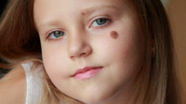 birthmarks moles