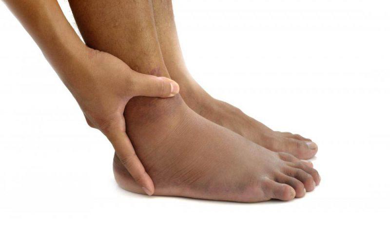 swollen-feet