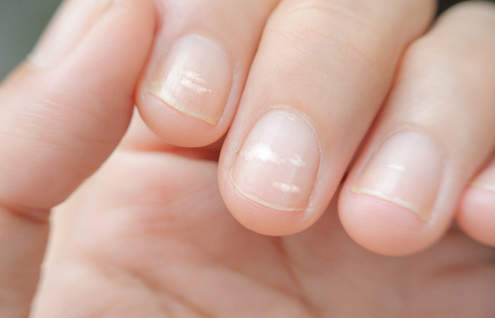 nail protein deficiency